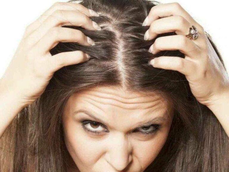 alopecia causas y tratamientos
