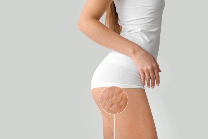 Cómo evitar la celulitis