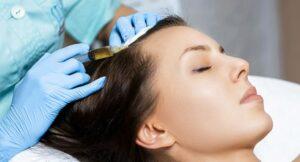 ¿En qué consiste la mesoterapia capilar?