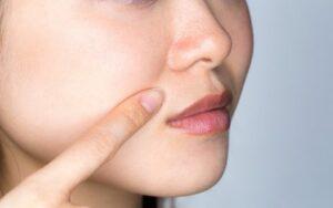 ¿Cómo disimular las arrugas nasogenianas?